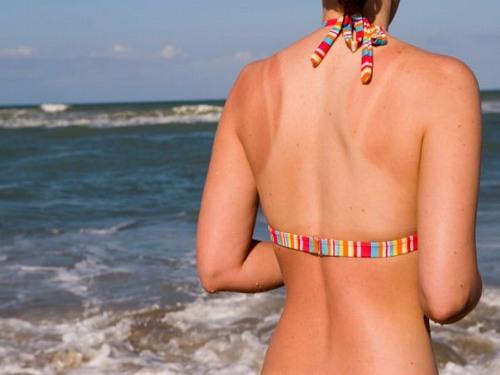 Dưới tác động của ánh nắng mặt trời gay gắt, làn da rất dễ bị cháy nắng