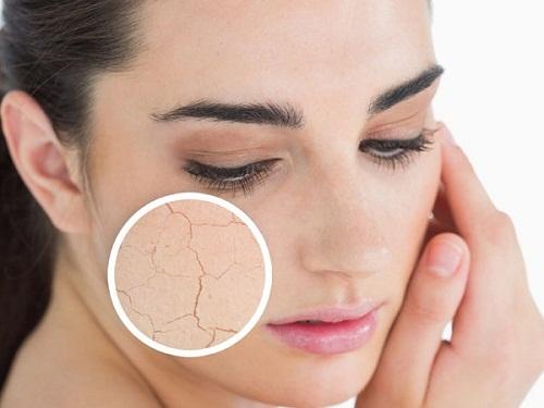 Da khô là làn da nhạy cảm và dễ bị tổn thương nên rất dễ bị nổi mụn