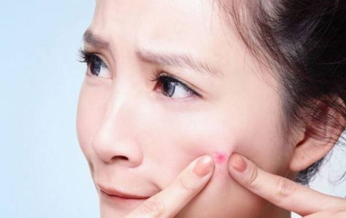 Nặn mụn làm cho vi khuẩn xâm nhập vào da, mụn phát triển mạnh mẽ hơn và còn làm tăng nguy cơ thể lại sẹo thâm khó xóa trên da.
