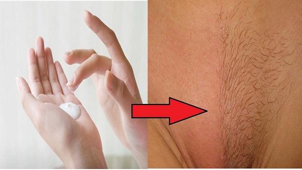 Để triệt lông vùng kín an toàn và đạt hiệu quả lâu dài, bạn cần lựa chọn phương pháp phù hợp.