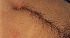 Có nên tẩy lông bụng và áp dụng phương pháp nào?
