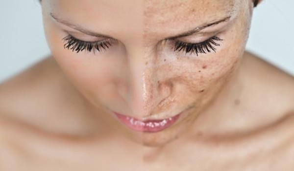 Tắm trắng phi thuyền hay collagen làm ức chế sự phát triển của các hắc tố gây nám melanon giúp tái tạo và làm trắng da