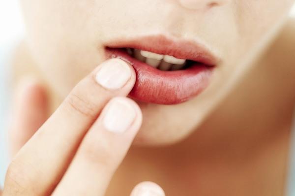 Theo các chuyên gia, phun môi bị mụn nước bạn chỉ cần làm sạch da môi bằng nước muối và bôi acyclovir.