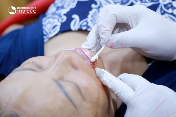 Trước khi thực hiện phun xăm môi, các kỹ thuật viên sẽ vệ sinh môi và thoa thuốc gây tê giúp quá trình thực hiện diễn ra nhẹ nhàng