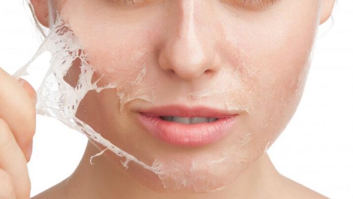 Tắm trắng lột tẩy sử dụng sản phẩm lột tẩy và hóa chất lột nhẹ lớp da đen bên ngoài