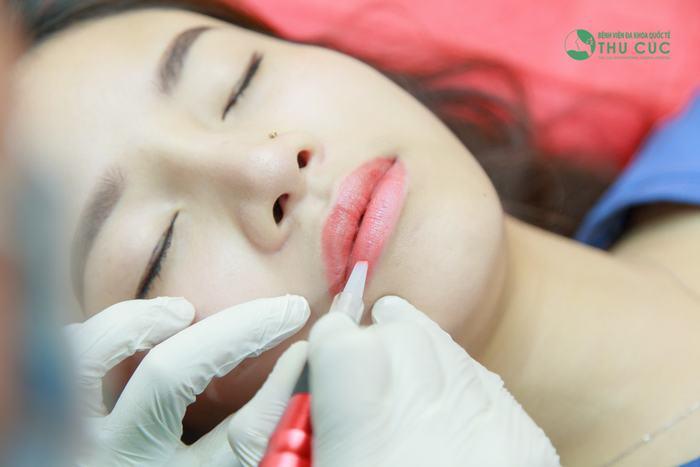 Phun môi bao lâu thì đẹp?