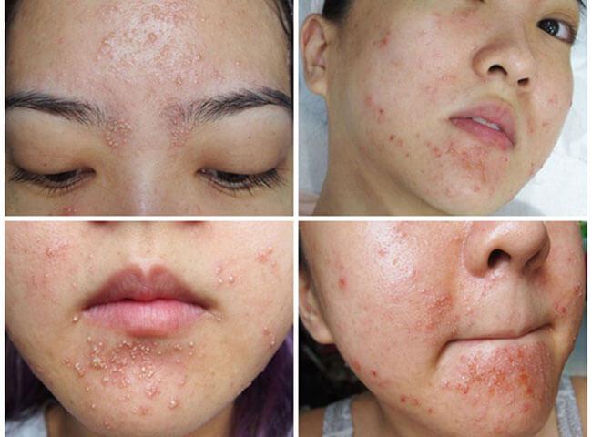Sử dụng sản phẩm tắm trắng lột da chứa hóa chất độc hại gây dị ứng da