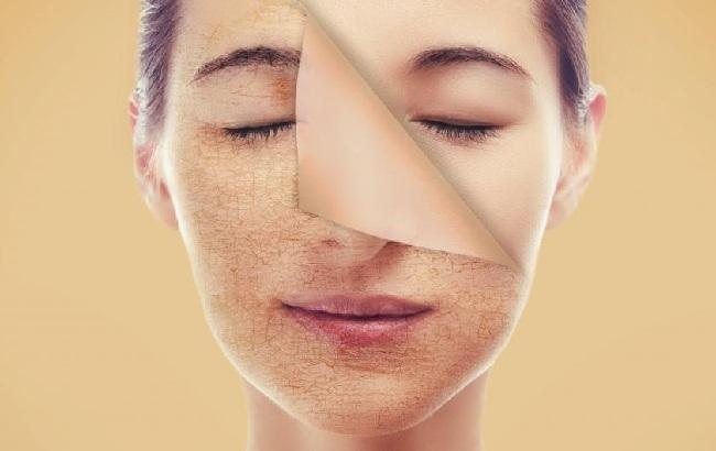 Thường xuyên thực hiện các biện pháp tẩy bỏ tế bào da chết để loại bỏ lớp da sần sùi trên bề mặt giúp làm sạch da và ngăn ngừa mụn mọc