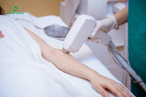 Triệt lông bằng công nghệ Diode Laser - công nghệ triệt lông mới nhất tính đến thời điểm hiện tại