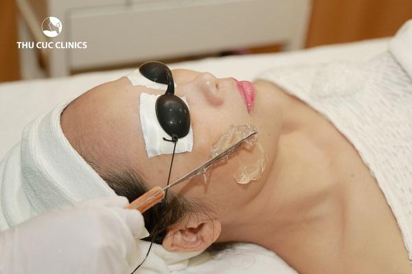 Thu Cúc mang lại cho khách hàng dịch vụ triệt lông mặt chất lượng cao nhất