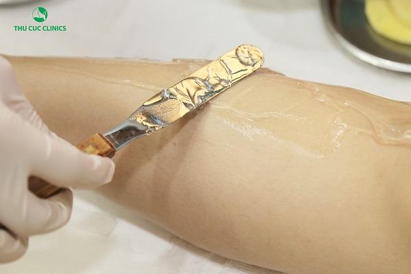 Triệt lông nách bằng công nghệ mới nhất Diode Laser của Mỹ