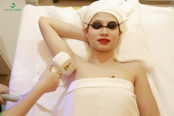 Triệt lông bằng công nghệ Diode Laser là phương pháp loại bỏ lông nách tốt nhất hiện nay