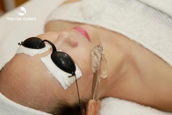 Triệt lông mặt bằng công nghệ Diode Laser