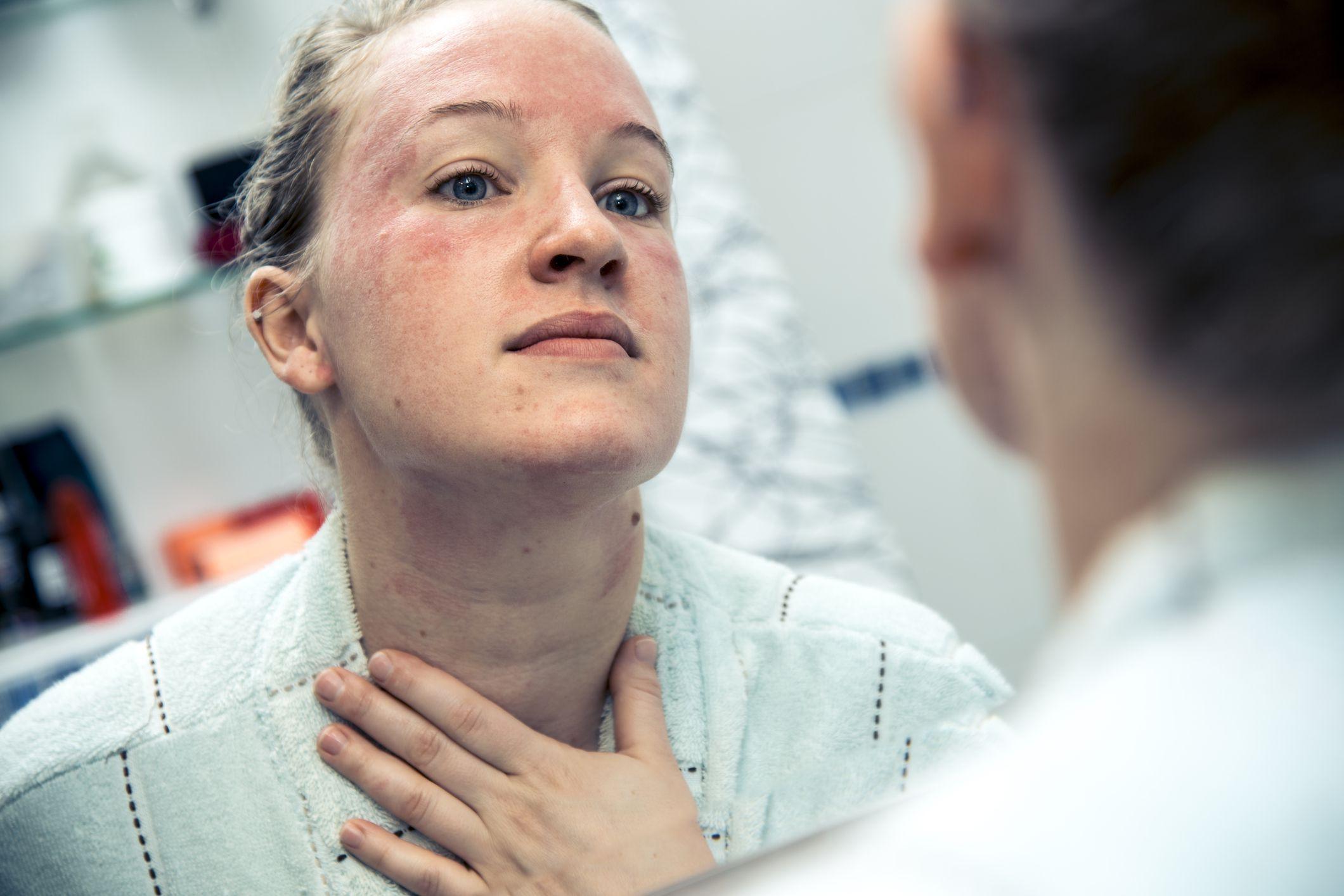 8 sự thật về bệnh chàm không phải ai cũng biết rõ