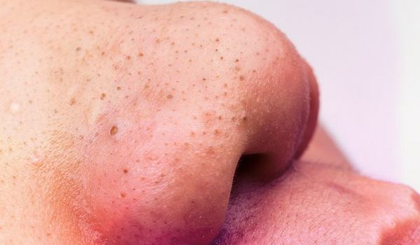 Cách trị mụn đầu đen hiệu quả lâu dài