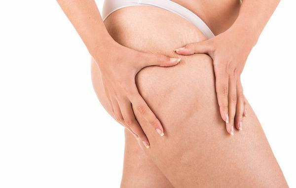 Cách chữa rạn da ở bắp chân xóa tan mặc cảm cho chị em