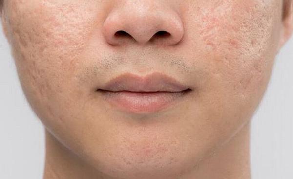 Mách bạn 5 cách trị sẹo rỗ tự nhiên hiệu quả tức thì