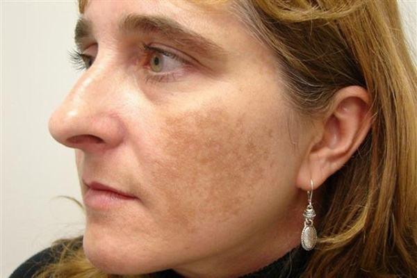 Mặt bị nám phải làm sao cách chữa thế nào là an toàn?