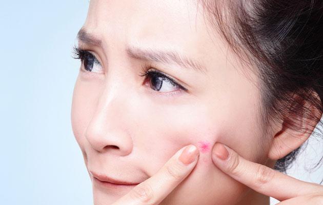 Chăm sóc da khi bị mụn