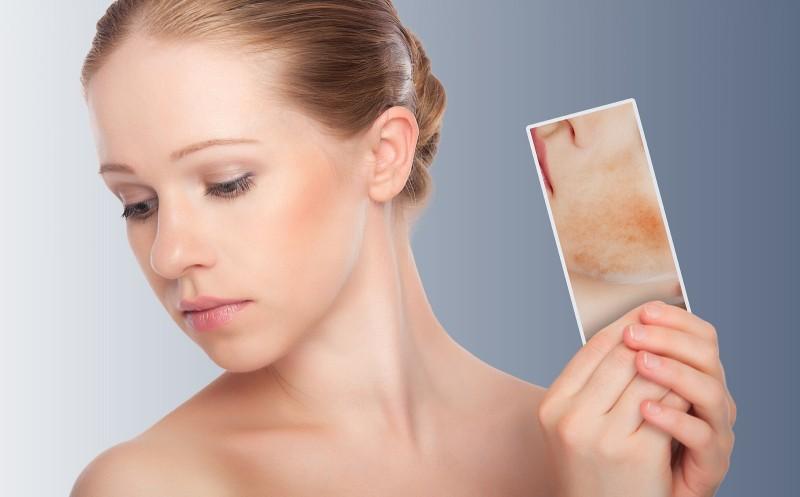 Trẻ hóa làn da