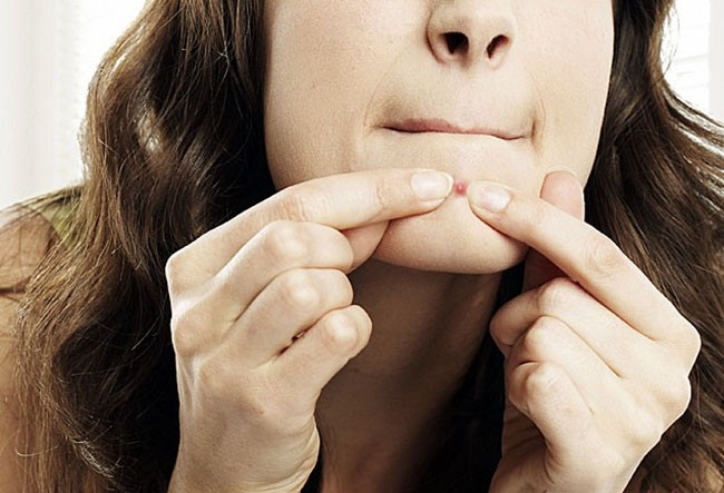 Cách chăm sóc da để không bị mụn