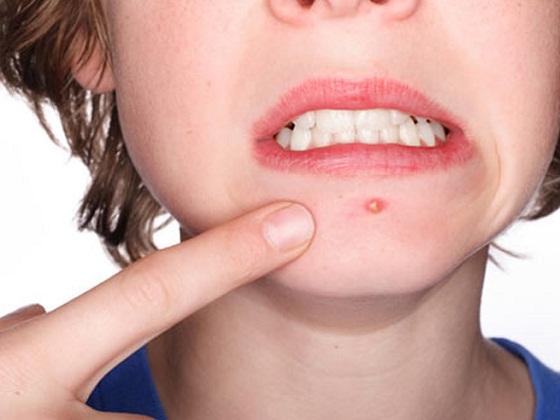 chăm sóc da để không bị mụn