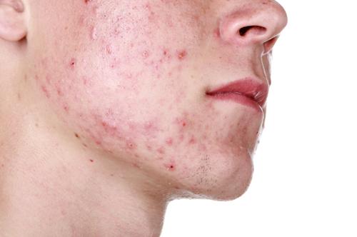 Không ít nam giới loay hoay với việc điều trị mụn trong thời gian dài