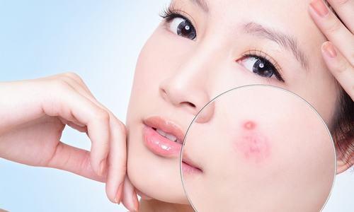Sử dụng tia laser là một trong những phương pháp giúp bạn loại bỏ mụn nhanh chóng, hiệu quả