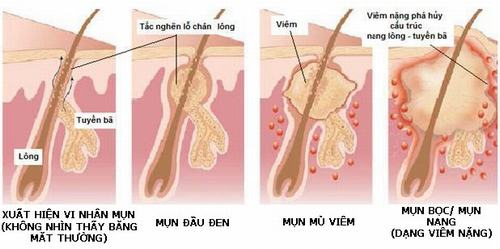 Tùy vào tình trạng mụn mà bác sĩ sẽ chỉ định bước sóng trị liệu khác nhau.