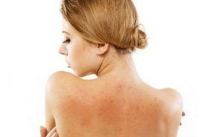 Spa điều trị mụn lưng