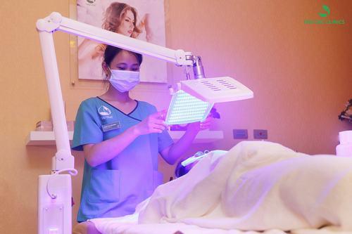Trị mụn bằng công nghệ ánh sáng xanh BlueLight tại Thu Cúc Clinics.