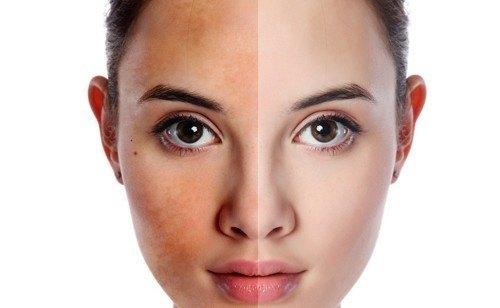 Để cải thiện tình trạng da thâm xỉn, không đều màu, liệu pháp đặc trị làm trắng da mặt bằng công nghệ sinh học tại Thu Cúc Clinics là gợi ý lý tưởng dành cho bạn.