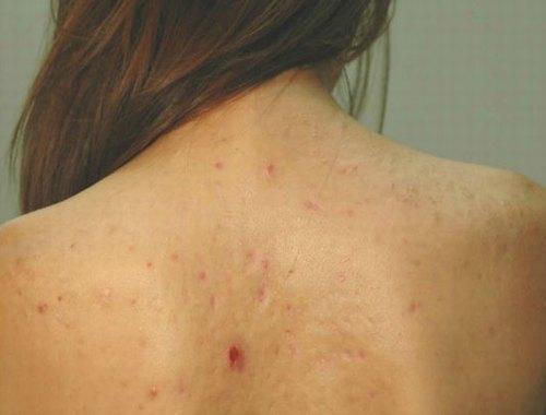 Do mụn lưng nằm ở khu vực khuất tầm mắt nên rất khó kiểm soát, dễ lan phát và viêm nhiễm diện rộng.