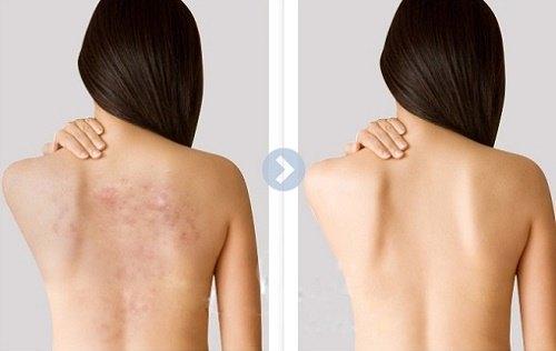 Cần sớm điều trị mụn vùng lưng trước khi da bị tổn thương sâu khó lành.