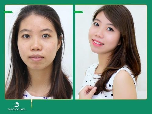 Hình ảnh Hà Trang trước và sau khi điều trị mụn tại Thu Cúc Clinics. (Lưu ý: Hiệu quả thẩm mỹ còn tùy thuộc vào cơ địa của mỗi người).