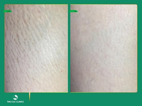 Hình ảnh trước và sau khi điều trị rạn da tại Thu Cúc Clinics (Lưu ý: Hiệu quả thẩm mỹ còn tùy thuộc vào cơ địa của mỗi người).