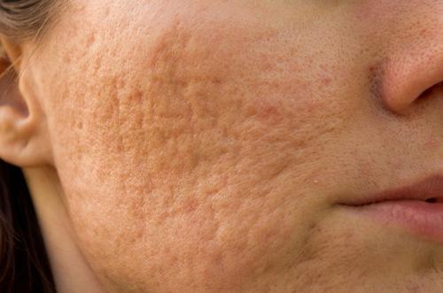 Sẹo lõm làm khuôn mặt phái đẹp trở nên sần sùi thâm sạm mất thẩm mỹ
