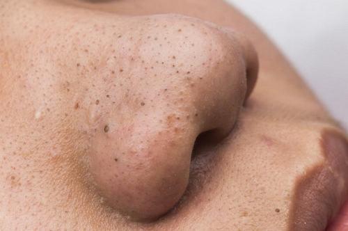 5 Cách làm mặt nạ trị mụn đầu đen đơn giản tại nhà
