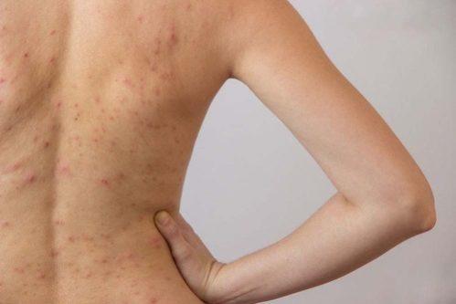 Phương pháp trị mụn lưng hiệu quả
