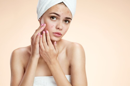 Không chỉ đối với những người có làn da nhờn mới bị mụn tấn công mà ngay cả đối với làn da khô cũng rất dễ bị mụn do quá trình đào thải bã nhờn diễn ra kém