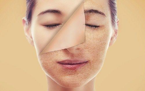 Da khô nứt nẻ nên dùng gói chăm sóc da nào?