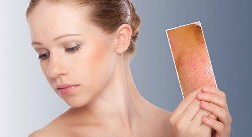Chăm sóc da mặt nhờn lỗ chân lông to