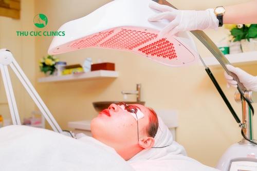 Trị mụn an toàn - hiệu quả bằng công nghệ Blue Light tại Thu Cúc Clinics
