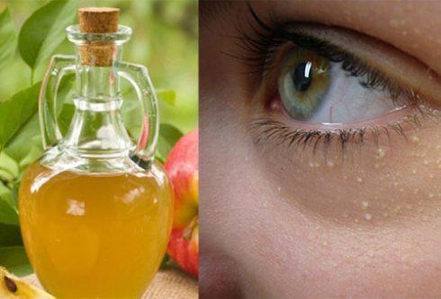 Đắp mặt nạ giấm táo để giảm thiểu cám giác đau nhức và lây lan