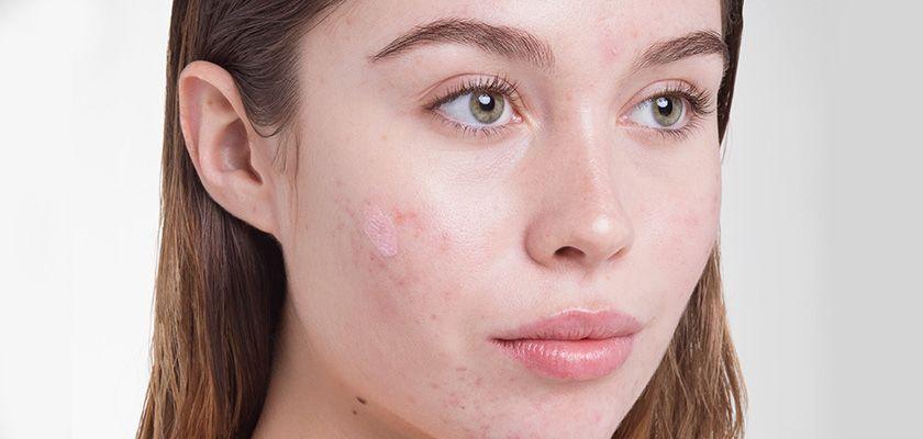 Các bước chăm sóc da mặt mụn đơn giản nhưng cần thiết