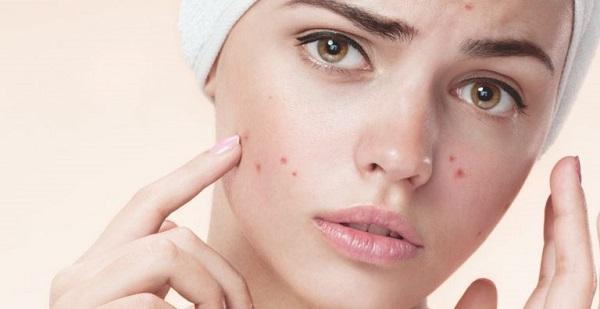 Làn da dầu cần chú ý vấn đề mụn trứng cá và tìm cách dưỡng da mặt phù hợp