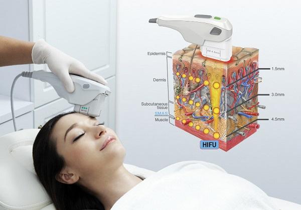 Hifu tác động vào 3 lớp sâu bên trong da