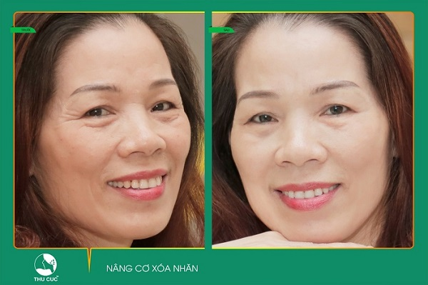 Kết quả điều trị Hifu của khách hàng tại Thu Cúc