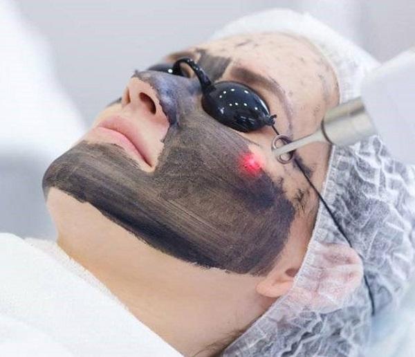 Bí quyết trẻ hóa làn da bằng than hoạt tính kết hợp với laser