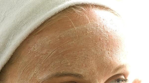 Nếu bạn có làn da mụn thì nên tẩy tế bào chết một cách nhẹ nhàng